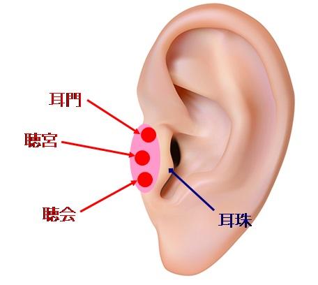 耳のツボ難聴