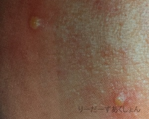ニキビ膿疱