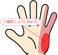 小指球,肘部管症候群