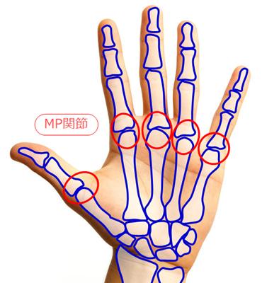 MP関節,ばね指