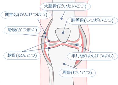 変形性ひざ関節症