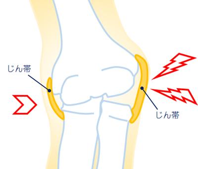 肘の靭帯損傷