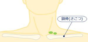 左鎖骨上窩リンパ節