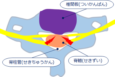 頚椎症性脊髄症