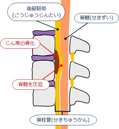 頸椎後縦靭帯骨化症